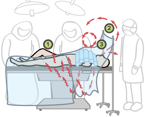 Waste heat rises from under drapes, exhaust air travels over anesthesia drape, excess radiant heat creates vortex