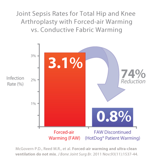 Joint Sepsis Rates for Total Hip and Knee Arthroplasty with Forced-air Warming vs Conductive Fabric Warming fall 74 percent.