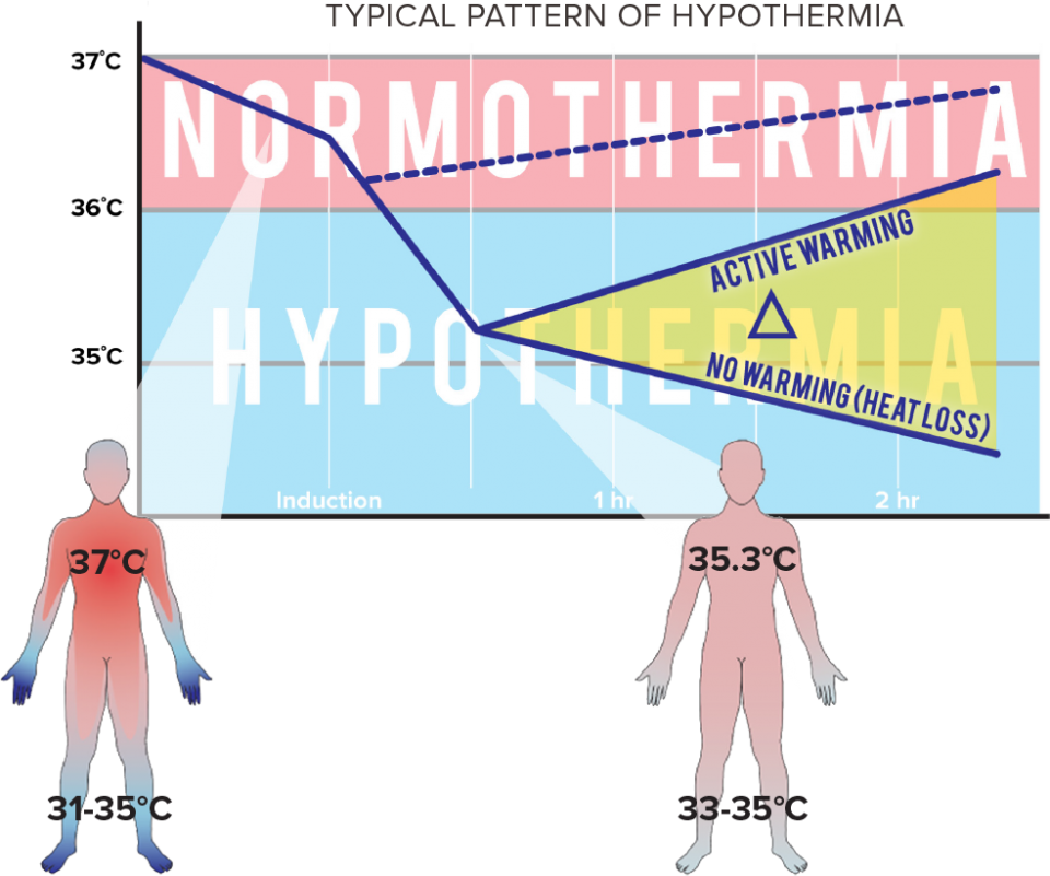 Typical Pattern of Hypothermia Chart