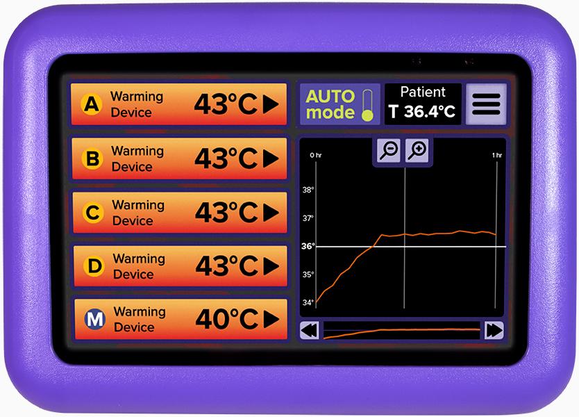 HotDog Patient Warming WC77 Temperature Management Controller TemperatureGraph